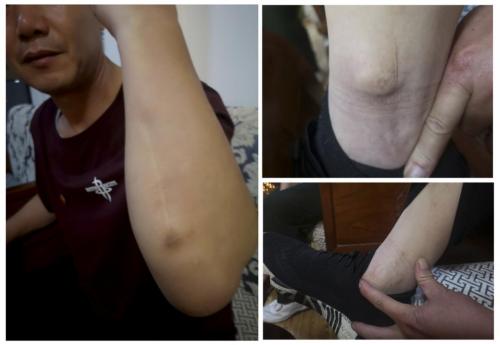 山西孝义:货车司机时隔12年重提痛苦经历,打人企业被指涉恶3